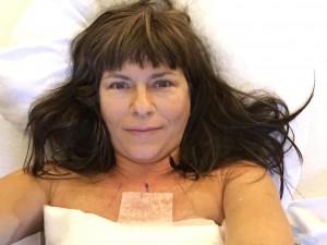 mastectomy selfie